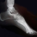 Podiatry Care in Lewis County